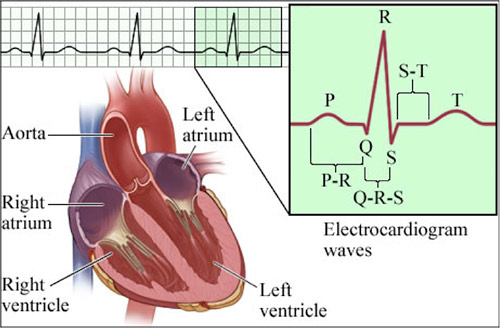 the use and types of electrocardiograms In the studying heart function using electrocardiograms kit for anatomy and physiology, take on the role of a cardiologist and review four case studies to determine the heart rate and analyze other characteristic patterns.
